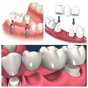 Los algodones Dental Bridges