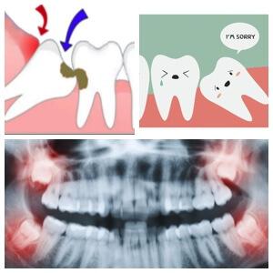 Los Algodones Wisdom Teeth